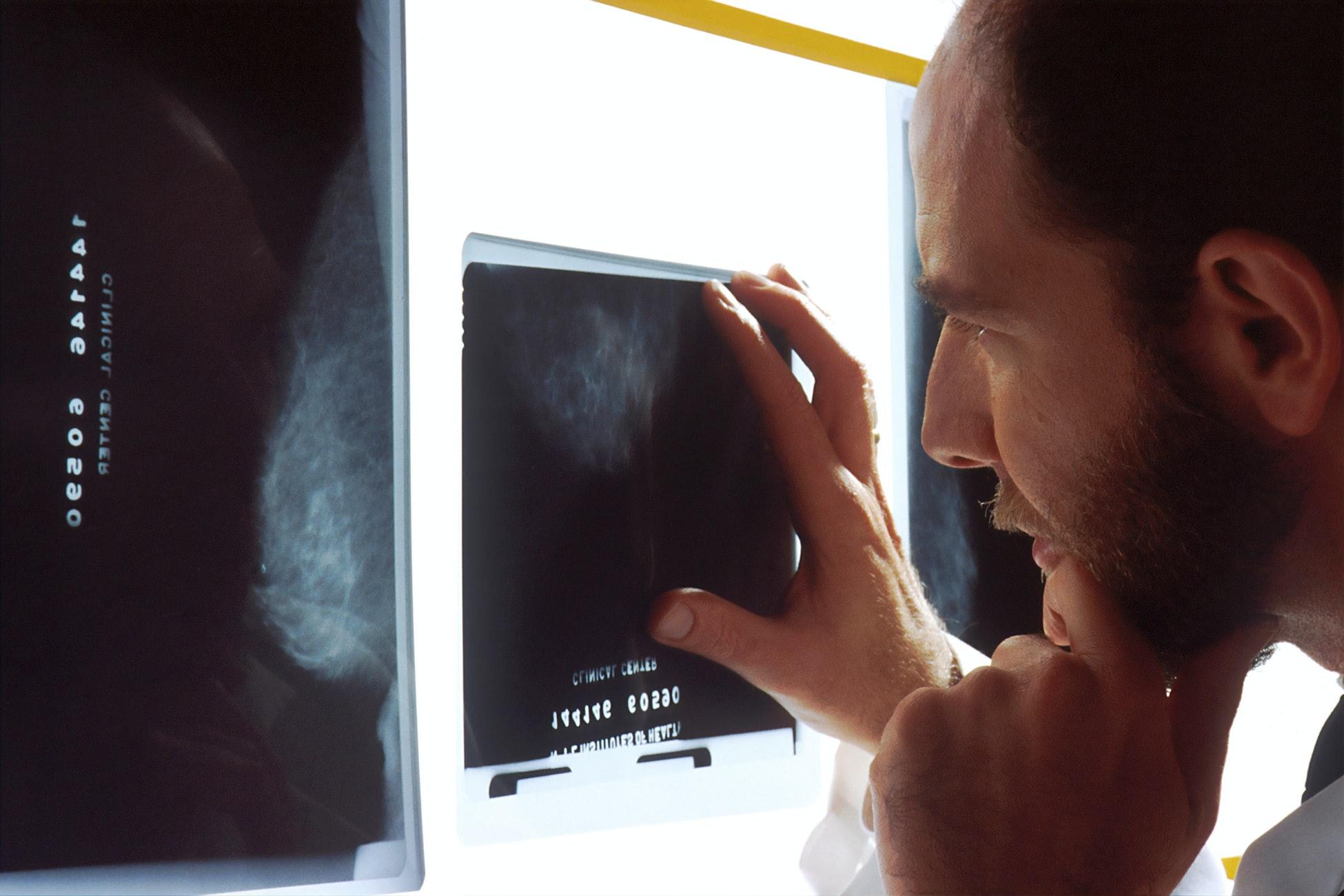 lekarz obserwujący wykonany rentgen